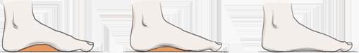 Các loại bàn chân