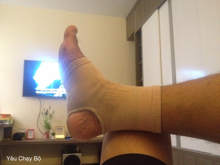 Chân phải bị chấn thương do ham đá banh