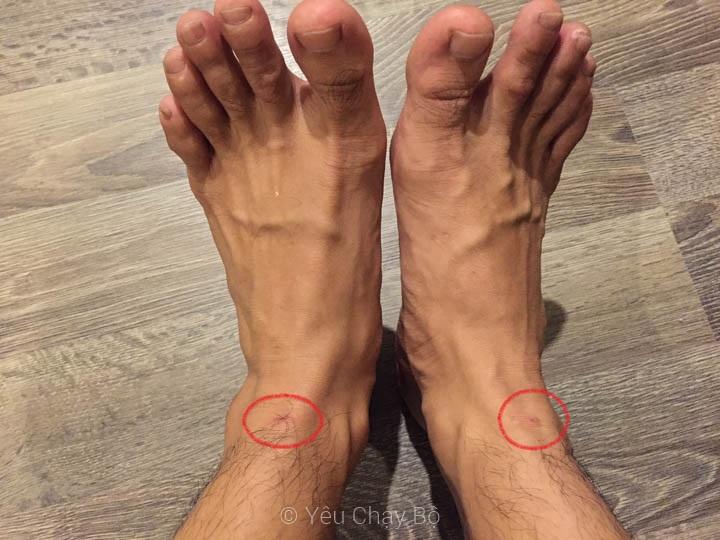 Hậu quả sau khi chạy: hai vết trầy rát gần chết